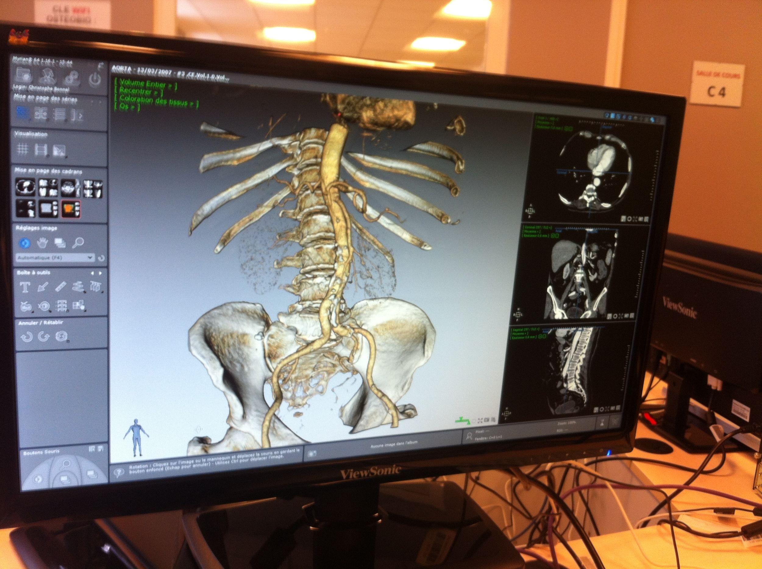 écran d'ordinateur au laboratoire de recherche de la clinique de l'école d'ostéopathie Ostéobio Paris à cachan
